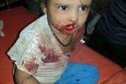 اليونيسيف تحققت من مقتل 1121 طفلا يمنيا منذ بداية العدوان.