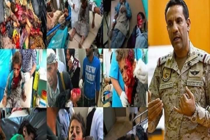 """( قصف المدنيين في اليمن مقصود ) وذلك لمبرر غريب تعلمه """"ابن سلمان"""" من الصهاينة."""