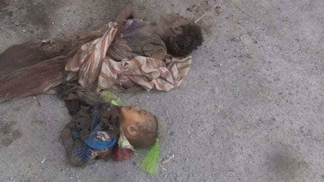 شاهد الصورة الأكثر إيلاما في مجزرة الدريهمي اليوم